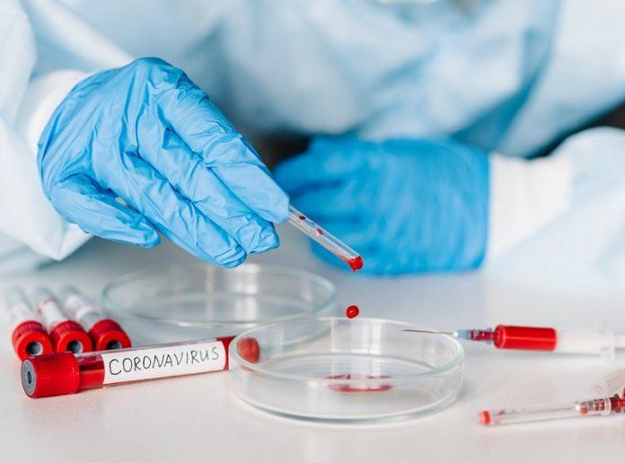 coronavirus test laboratori