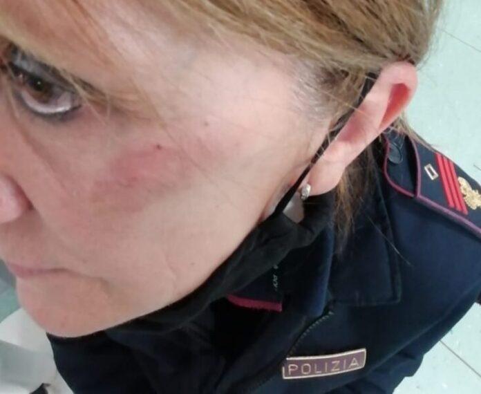 poliziotta picchiata a vercelli